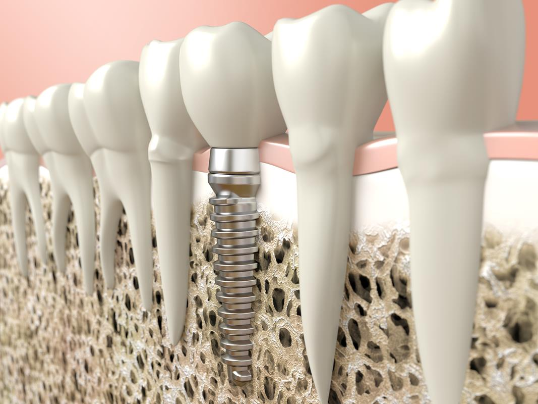 Dental Implants  Macomb, IL